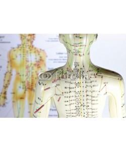 B. Wylezich, Akupunktur10