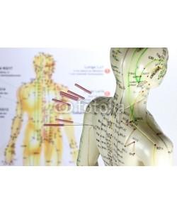B. Wylezich, Akupunktur11
