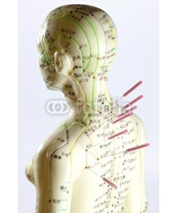 B. Wylezich, Akupunktur13