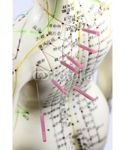 B. Wylezich, Akupunktur14