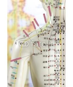 B. Wylezich, Akupunktur08