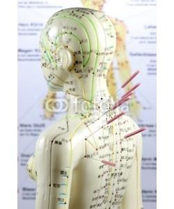 B. Wylezich, Akupunktur12
