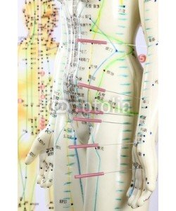 B. Wylezich, Akupunktur15