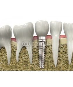 Guido Vrola, Dental implant