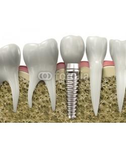Guido Vrola, Dental implant